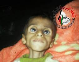 palestinians starving in Syria