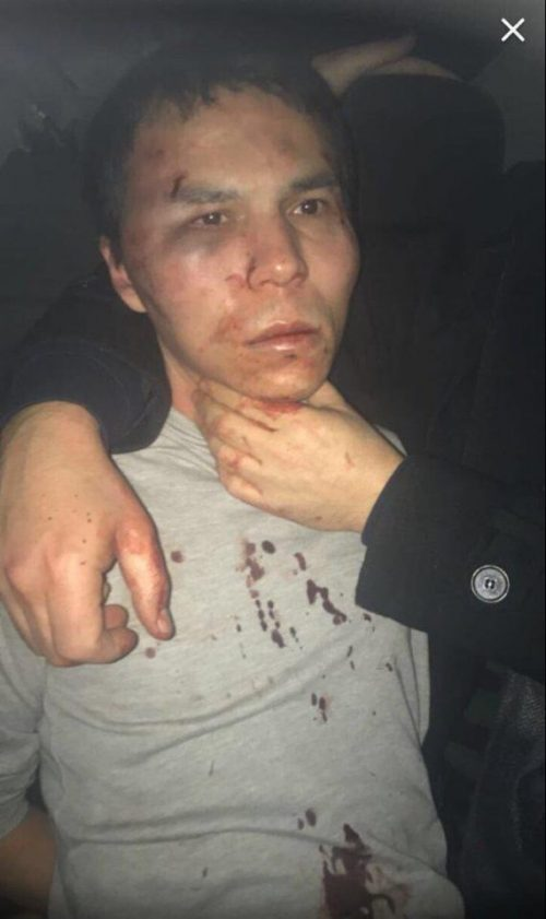 A bloodied looking Abdulkadir Masharipov pictured following arrest in Istanbul