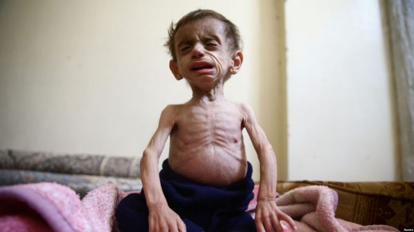 Two-and-a-half year old Hala al-Nufi, who suffers from a metabolic disorder which is worsening due to the siege and food shortages in the eastern Ghouta. The U.N. High Commissioner for Human Rights, Zeid Ra'ad Al Hussein accuses the Syrian government of denying food and medical supplies to hundreds of thousands of civilians besieged in Eastern Ghouta, on the outskirts of the capital Damascus.