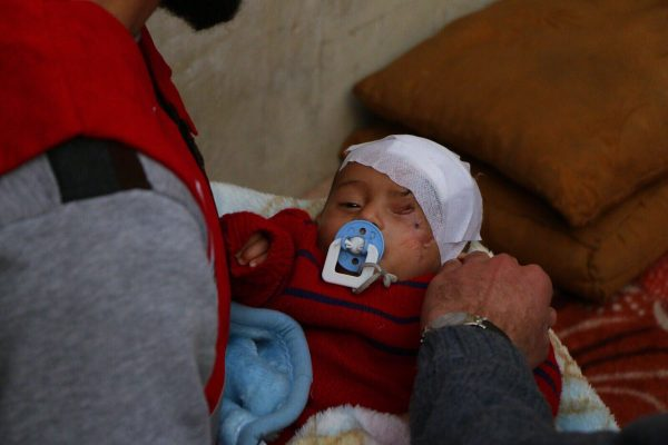 Karim Abdel Rahman -- a Syrian infant who lost his left eye two months ago in an artillery attack -- has become a symbol of the carnage and the humanitarian crisis in the Damascus suburb of Eastern Ghouta.